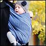 Дисплазия новорожденного