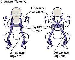 дисплазия тазобедренного сустава и слинг